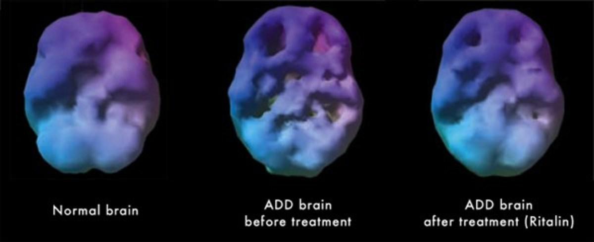 adhd-brain-on-drugs