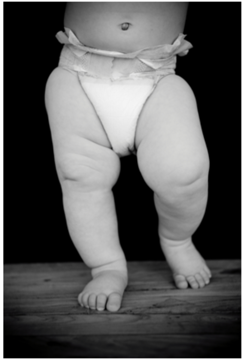 chunky baby legs